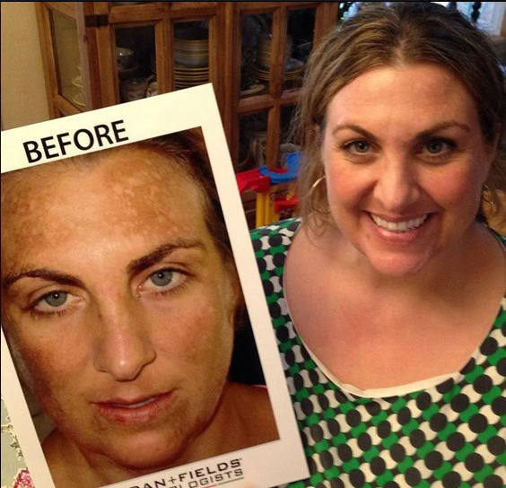 Christina is amazed at how much her skin has changed since using the products.